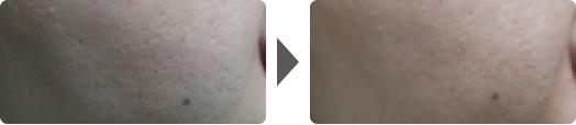 Asterasys_Futera-Dots-PartB-pic1