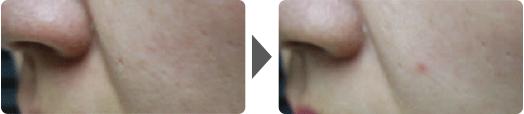 Asterasys_Futera-Dots-PartB-pic2
