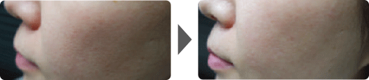 Asterasys_Futera-Dots-PartB-pic3