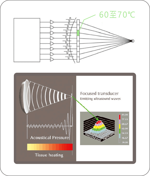 classys-Ulfit-HIFU-龍捲風溶脂波-picA1