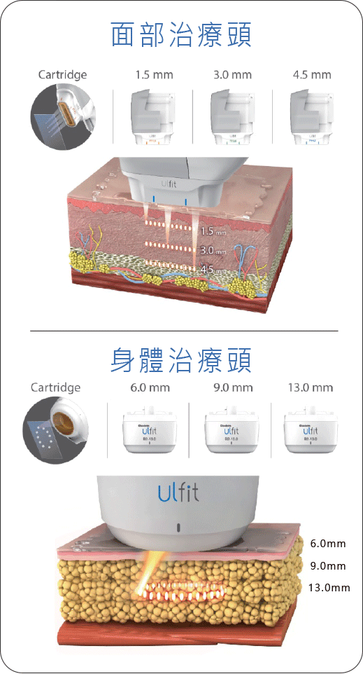 classys-Ulfit-HIFU-龍捲風溶脂波-picC2